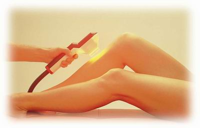 IPL hair removal on legs